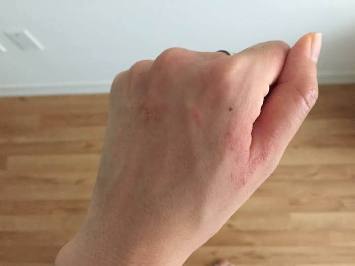Green Goo Dry Skin Salve for Eczema review for hand eczema after healing